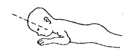 Kuesioner Praskrining untuk Bayi 3 bulan (3/6)